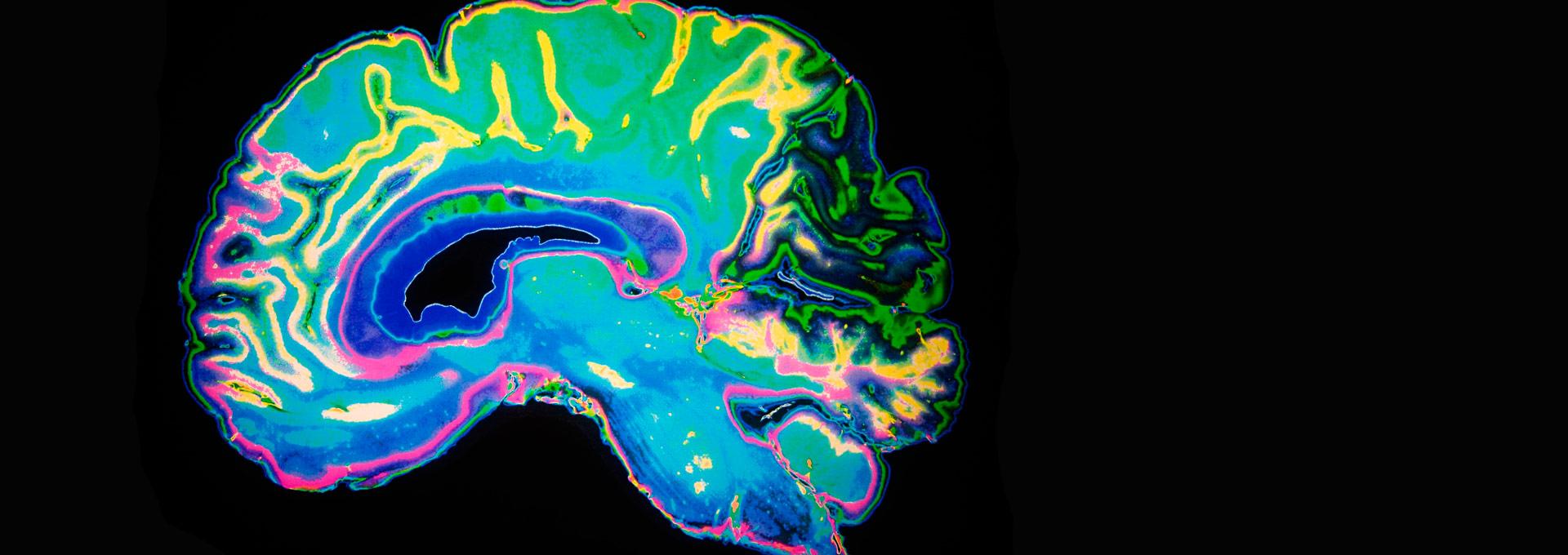 slide-cerebro